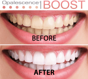 Opalescence Boost - before_and_after_boost_photo-300x267