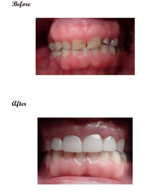 crowns & brdieges - before and after