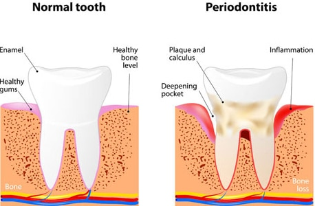 periodontal vs healthy teeth